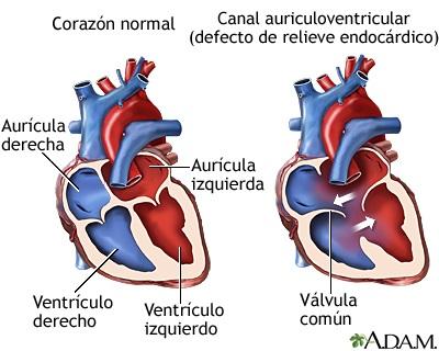 Cardiopatía congénita