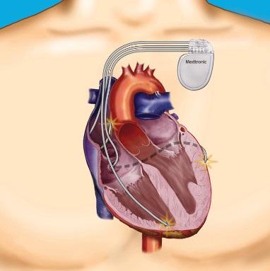 Resincronizador cardíaco