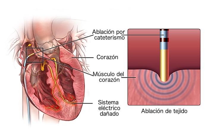 ablacion por cateterismo