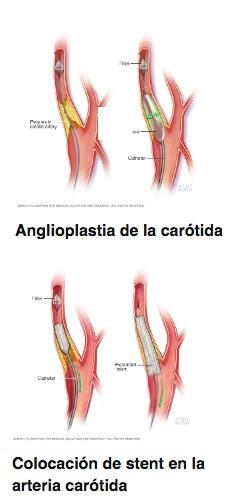 Angioplastia carotídea con colocación de stents