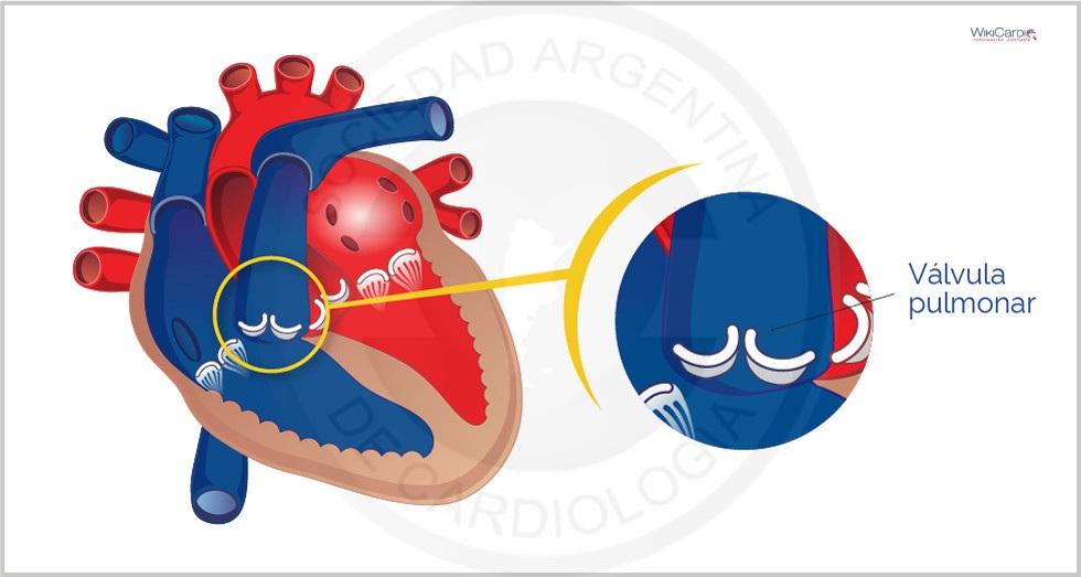 Estenosis Pulmonar e Insuficiencia Pulmonar