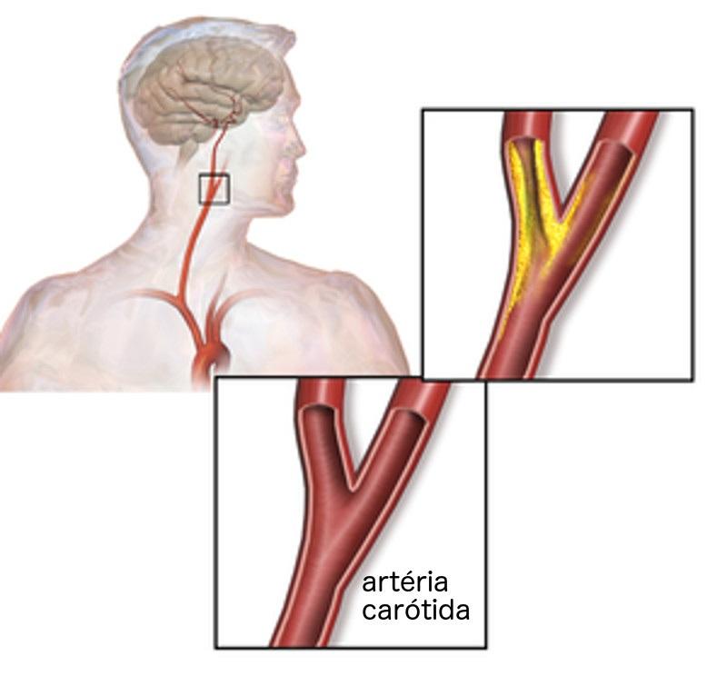 estenosis carotidea
