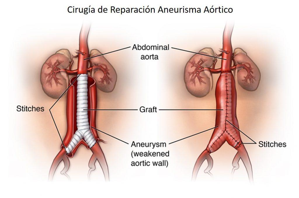 Cirugia de Aneurisma Aorta Abdominal