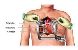 esternotomia media