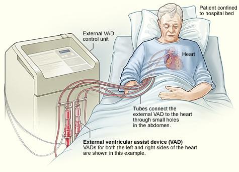 asistencia ventricular transcutanea