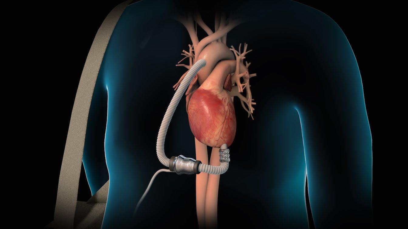 asistencia ventricular