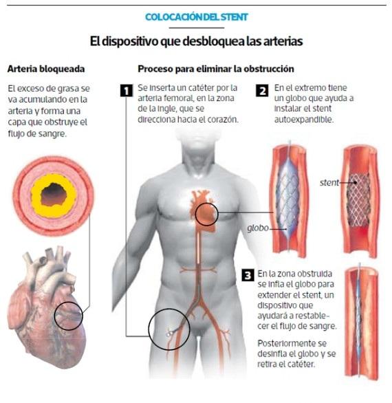 colocacion de stents