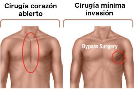 tipos de cirugia de bypass coronario