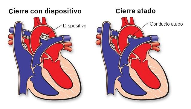 cierre de conducto arterioso persistente