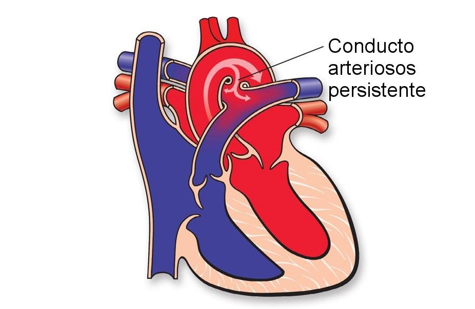 conducto arteriosos persistente