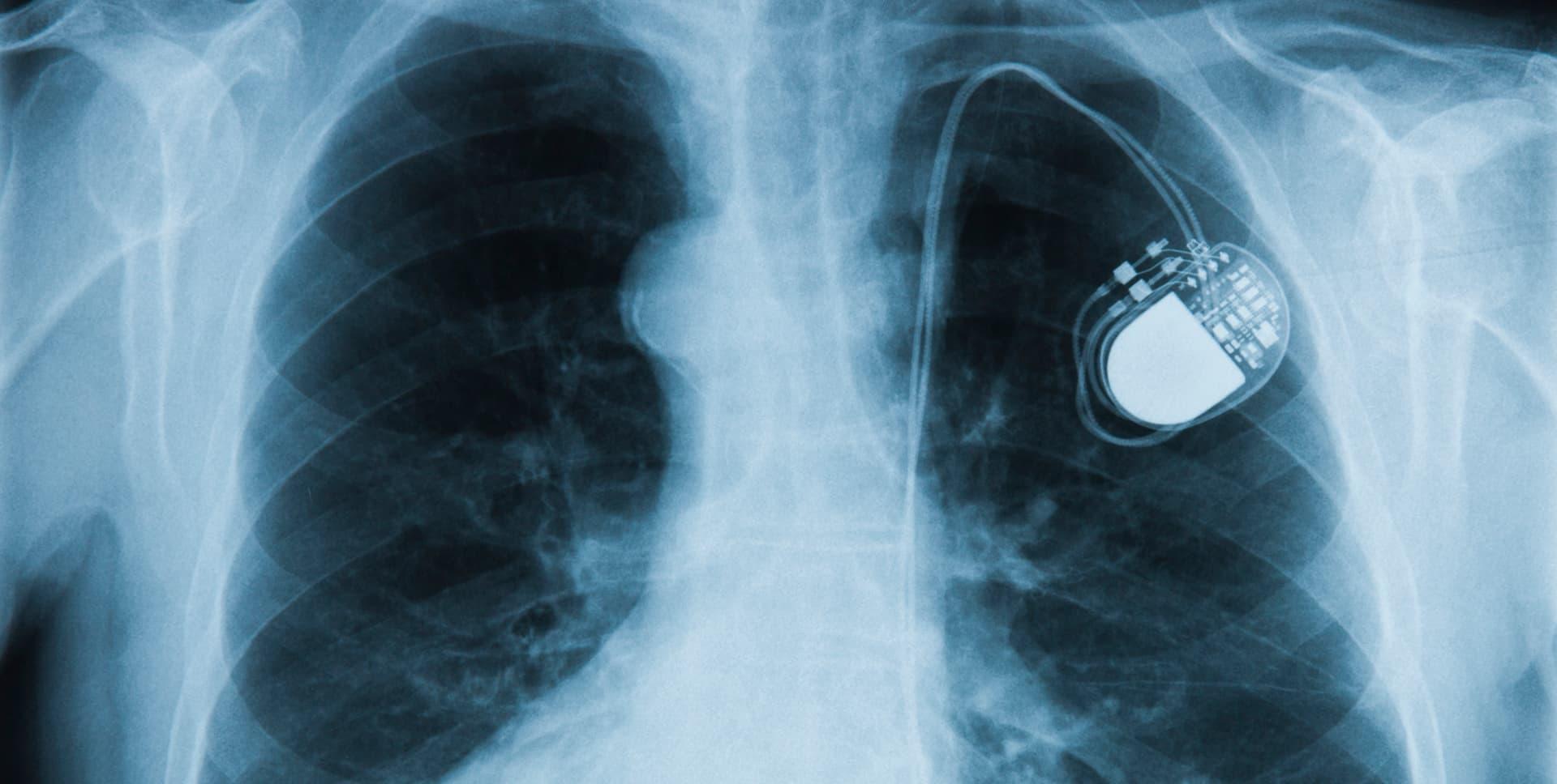 Marcapasos Cardiaco